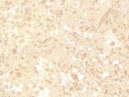Turkey Frans Beige Marble texture